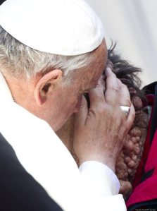 Pope Francis touches a deformed man.